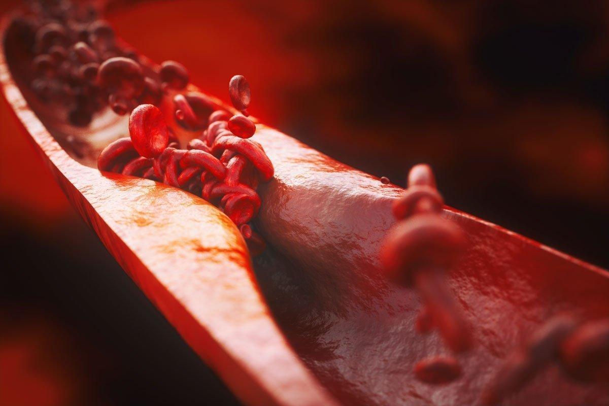 Malattie cardiovascolari: l'importanza dei fattori di rischio modificabili nella prevenzione